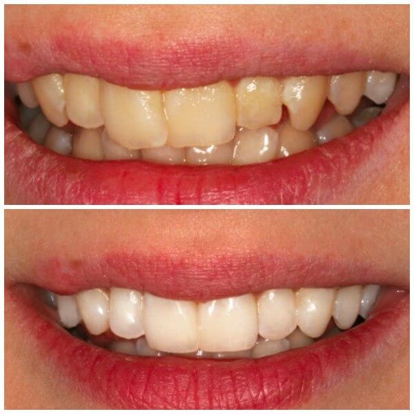 Przed i po zabiegu stomatologii estetycznej